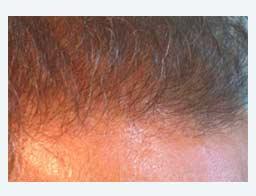 Haartransplantation mit guter Haardichte