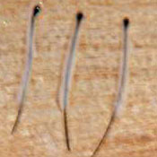Haarfollikel bei einer Haarverpflanzung
