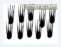 Haartransplantation Megasitzung