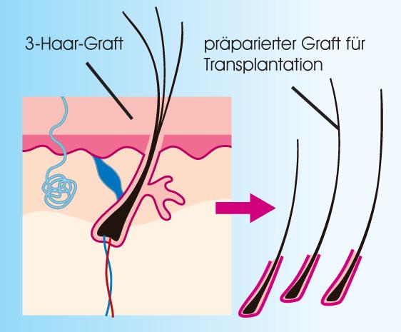 haartransplantation was ist eine haarverpflanzung