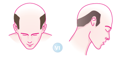 Wie poletschit das Haar vom Vorfall