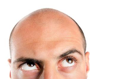 Hilfe Gegen Haarausfall